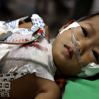 Cambogia – Angkor Hospital for Children, for Mission Bambini Foundation